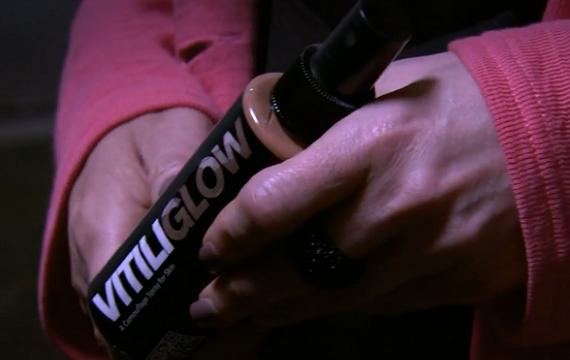 vitiliglow